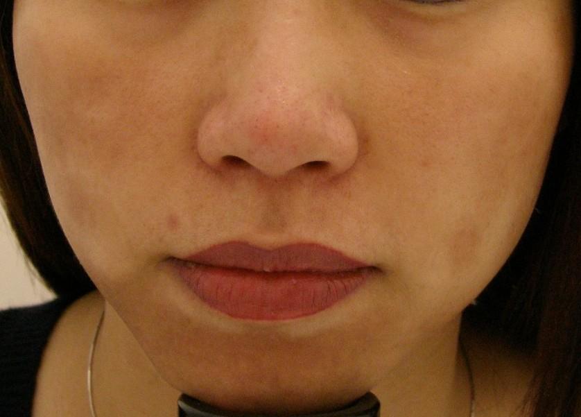 درمان لک صورت مشکل بوده و شامل استفاده از کرمهای ضدآفتاب و داروهای کاهش دهنده رنگدانه های پوست است